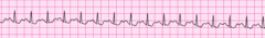 A 53-year-old man has shortness of breath, chest discomfort, and weakness. The patient's blood pressure is 102/59 mm Hg, the heart rate is 230/min, the respiratory rate is 16 breaths/min, and the pulse oximetry reading is 96%. The lead II ECG is displayed below. A patent peripheral IV is in place. What is the next action?