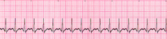 A patient has sudden onset of dizziness. The patient's heart rate is 180/min, blood pressure is 110/70 mm Hg, respiratory rate is 18 breaths/min, and pulse oximetry reading is 98% on room air. The lead II ECG is shown below: