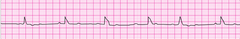 After verifying the absence of a pulse, you initiate CPR with adequate bag-mask ventilation. The patient's lead II ECG appears below. What is your next action?