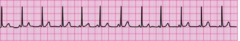 During a pause in CPR, you see this lead II ECG rhythm on the monitor. The patient has no pulse. What is the next action?