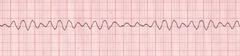 EMS personnel arrive to find a patient in cardiac arrest. Bystanders are performing CPR. After attaching a cardiac monitor, the responder observes the following rhythm strip. What is the most important early intervention?