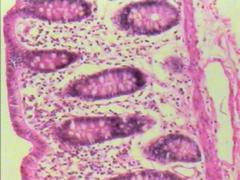 glandualar epithelia