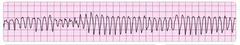 polymorphic ventricular tachycardia - aka torsades