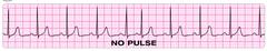 pulseless electrical activity