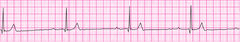 Sinus bradycardia - version 2