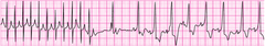 SVT converting to sinus rhythm after adenosine administration