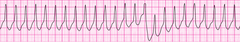Wide complex tachycardia - version 2