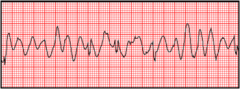 You are monitoring a patient with chest discomfort who suddenly becomes unresponsive. You observe the following rhythm on the cardiac monitor. A defibrillator is present. What is your first action?