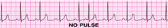 You have completed 2 min of CPR. The ECG monitor displays the lead below (PEA) and the patient has no pulse. You partner resumes chest compressions and an IV is in place. What management step is your next priority?
