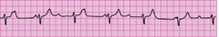 You have completed 2 minutes of CPR. The ECG monitor displays the lead II rhythm below, and the patient has no pulse. Another member of your team resumes chest compressions, and an IV is in place. What management step is your next priority?